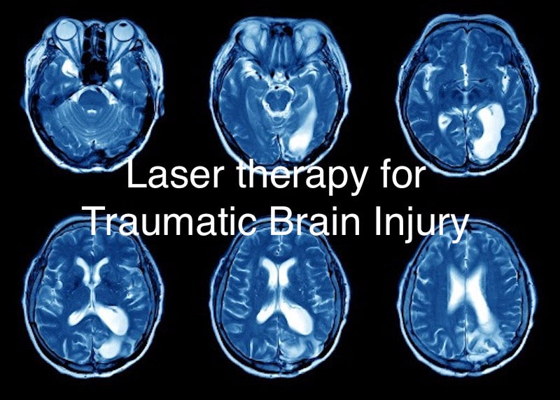 Laser Therapy for Traumatic Brain Injury(TBI)