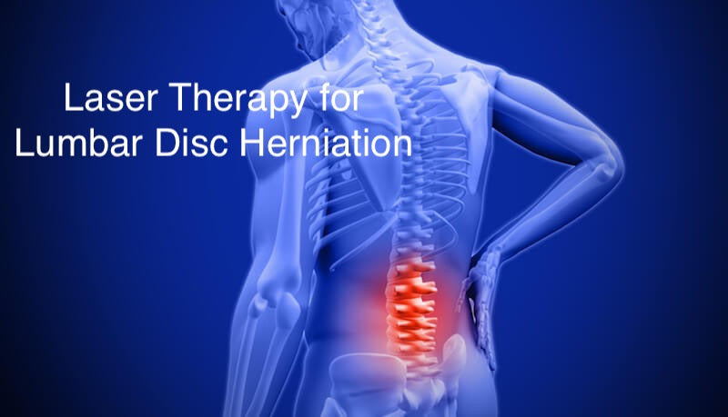 What is the Best Way to Treat Lumbar disc herniation