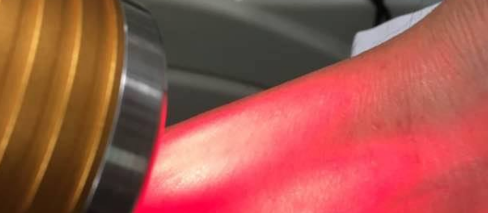 Cold Laser Therapy Reviews - Accidental injury