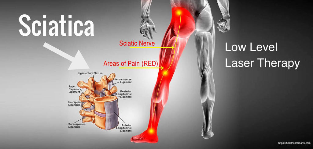 The Best Way to Treat Sciatica - Low Level Laser