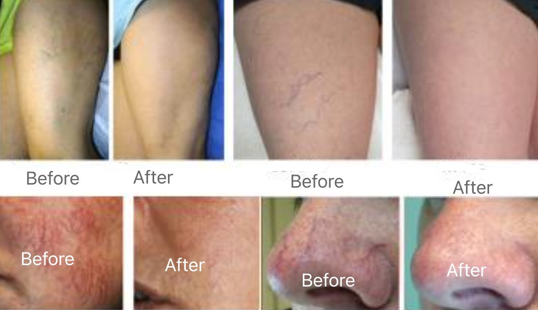 Class 4 laser for vascular removal