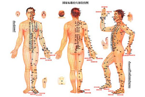 Acupuncture Poster 24inx36in Poster