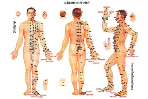 Acupuncture poster 27x40| theposterdepot.com