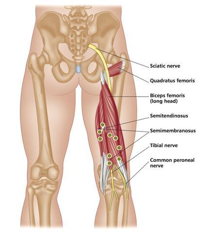 Common Sports Injuries: Treating the Hamstrings