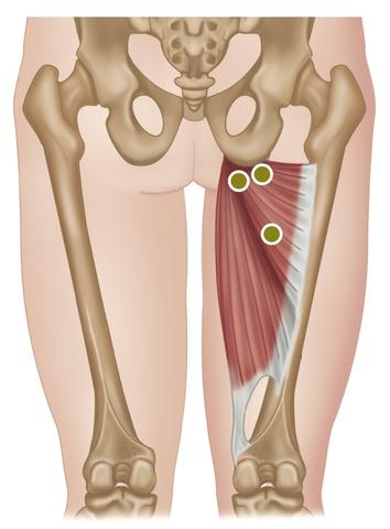 Treating the Hip Adductors