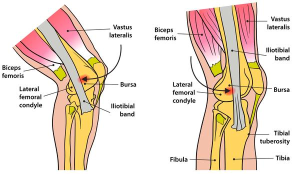 Recognising and Treating Iliotibial Band Syndrome