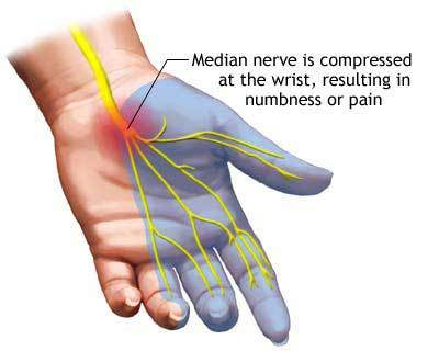 Self Help Tips for Treating Carpal Tunnel Syndrome