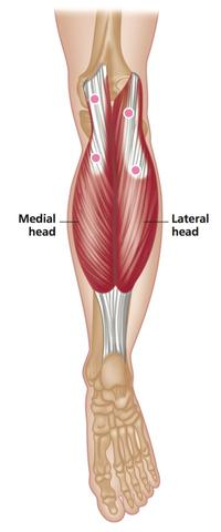 trigger point sites in the gastrocnemius