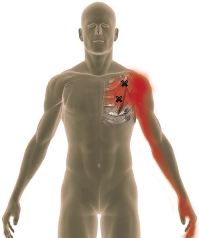 trigger points in the pectoralis minor