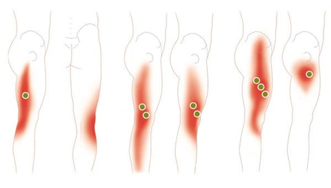 Common Trigger Point Sites and Referred Pain Maps for the Quadriceps