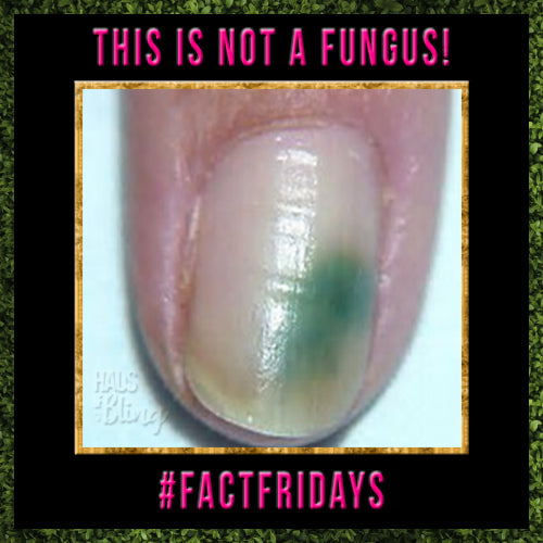 Is it a Fungus?? Fungus vs. Pseudomonas #FACTFRIDAYS