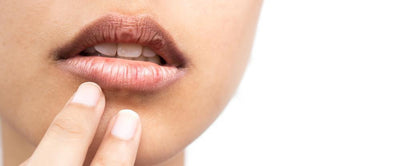 Natural Remedies for Lips That Actually Work
