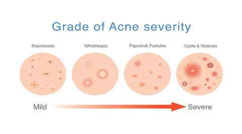Degrees of Acne Severity