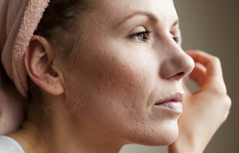 Woman with adult acne