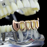 14k Rose Gold Plated Lower Bottom Vampire Fangs