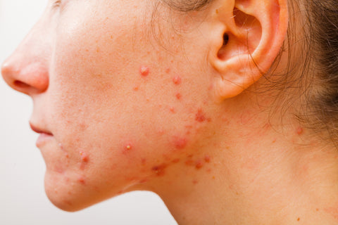 Does soy cause acne? Veise Beauty