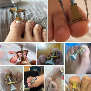 Nail Fix For Ingrown Nails