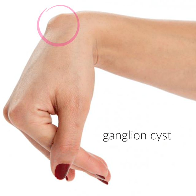 Gang up on a Ganglion Cyst - Camp Wander