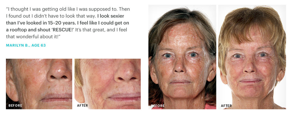 Rescue Skin Testimonial by Marilyn