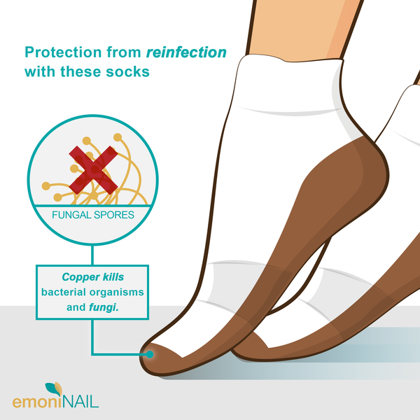 EmoniNail Anti-Fungal Copper Socks