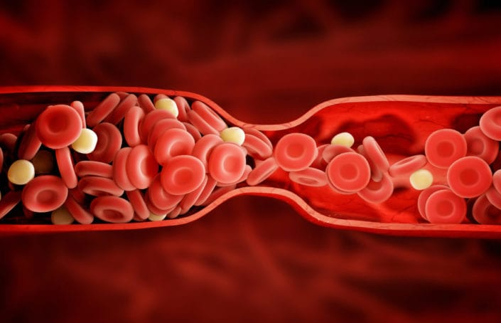 BLOOD CLOTS DURING YOUR PERIODS