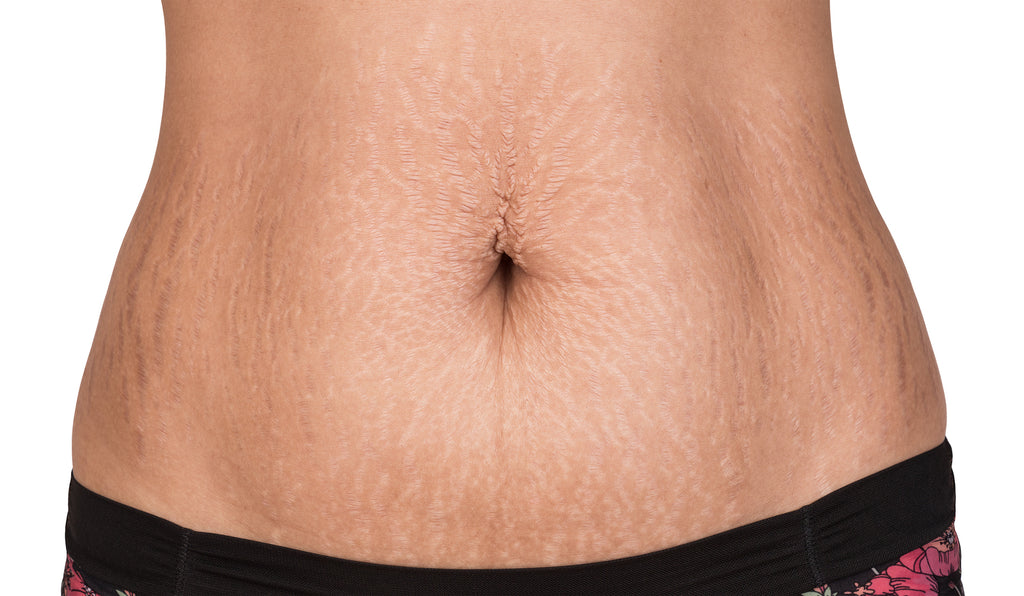 7 Tips to Help Prevent Stretch Marks