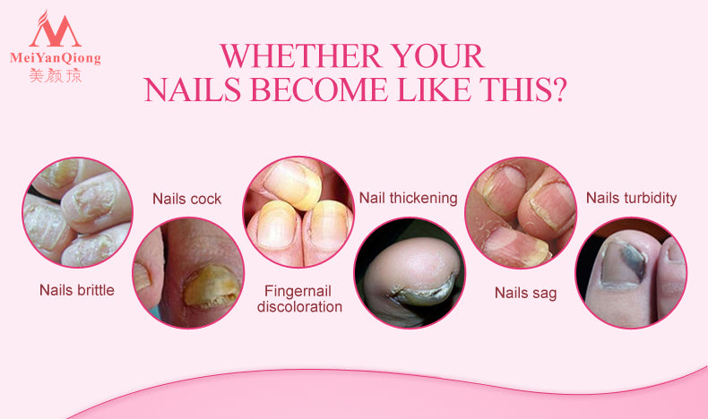 Herbal Nail Treatment Onychomycosis Paronychia Anti Fungal