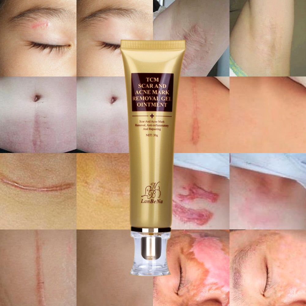 Ginseng Extract Stretch Marks, Scars, Blackheads, Acne Cream Removal