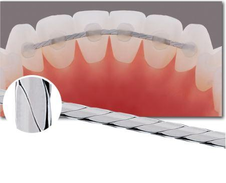dây-duy-trì-dẹt-ortho-technology-49p.vn