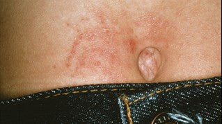 talkhealth forums • View topic - TYPES OF ECZEMA - Learn
