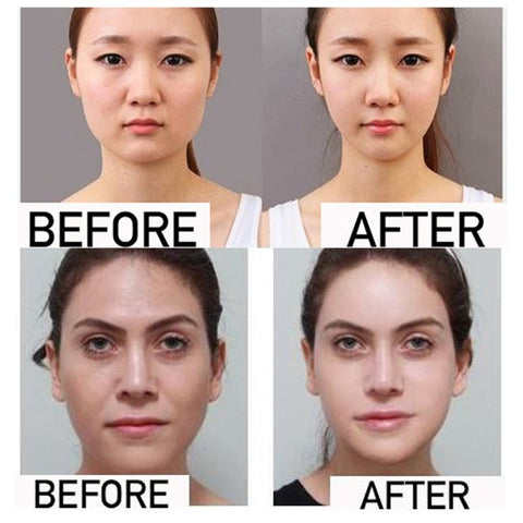 Before and after effect of Miracle V-Shaped Slimming Mask