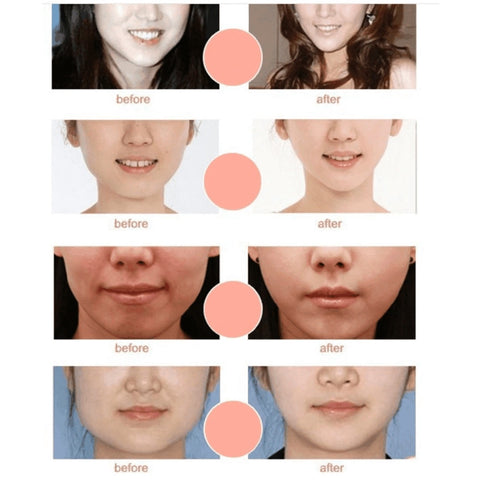 Miracle V-Shaped Slimming Mask before and after effect