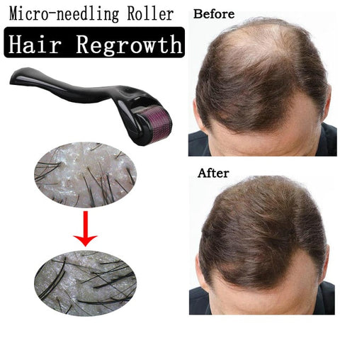 Hair Re-grower Roller