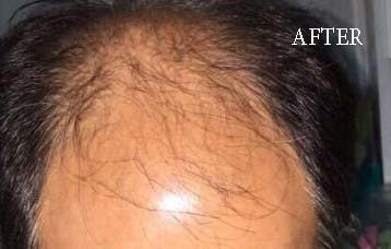 hair loss after
