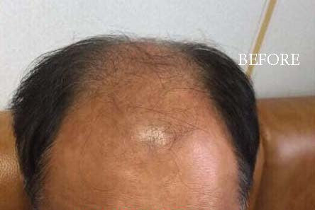 hairloss before