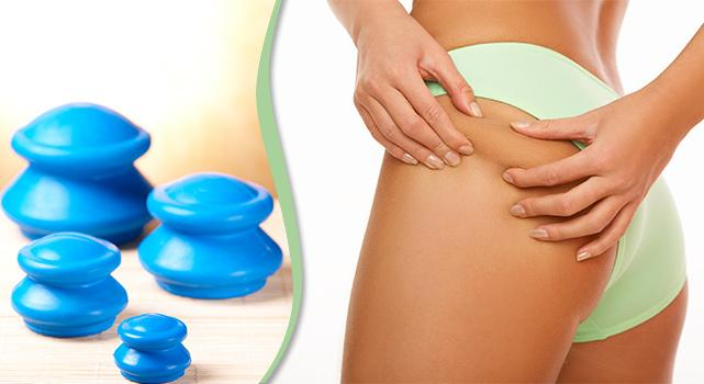 Cupping against Cellulite