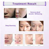 Microdermal Blackhead Removal and Skin Peel Facial Massage Device