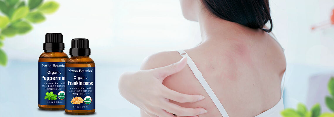 Essential Oil Recipe for Itchy Skin