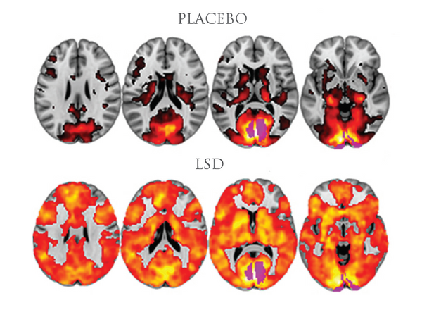 Brain scans from Feilding's 2016 imaging study, showing the difference between the brain of someone on a placebo vs someone on LSD. Image: Amanda Feilding/Beckley Foundation.
