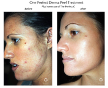 Perfection Lift Chemical Peel