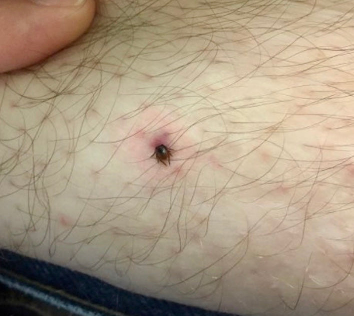 Ticks : what you need to know