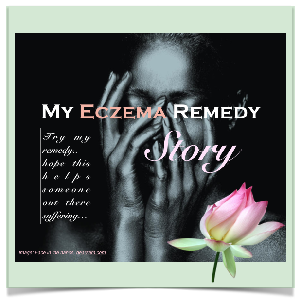 My Eczema Remedy Story
