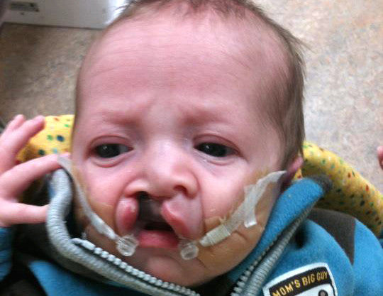 baby with Cleft palate