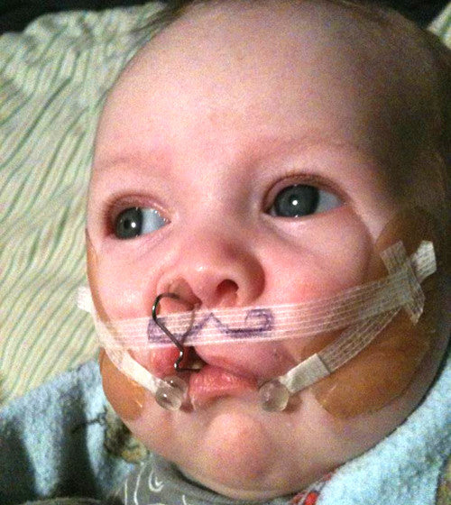 Baby with cleft palate repair in progress
