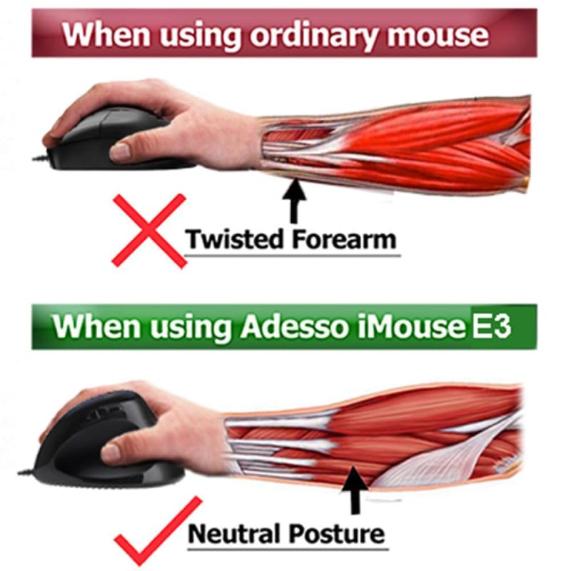 Adesso® iMouse™ E3 Vertical Ergonomic Programmable Gaming Mouse with Adjustable Weights