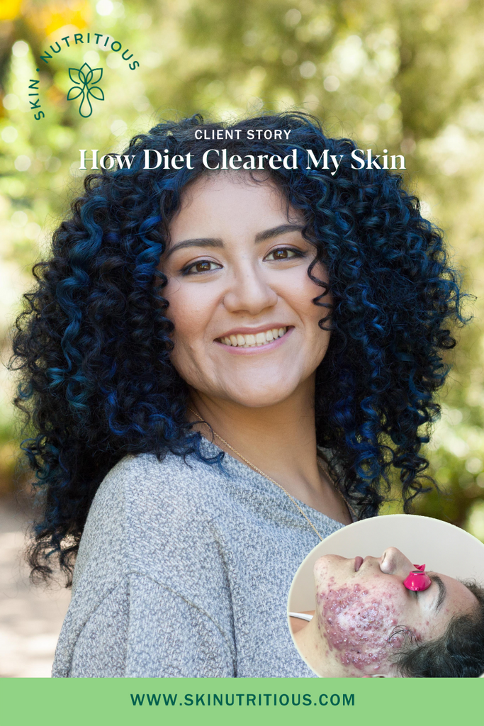 How Diet Changes Cleared Diana's Cystic Acne in 12 Weeks