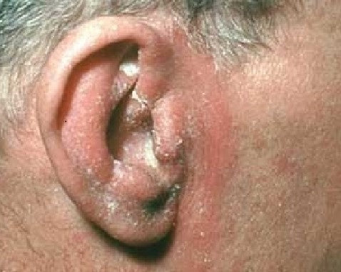 Adult Seborrheic Dermatitis: greasy, yellow/white flakes and swollen red skin around the ears