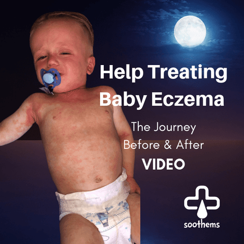 Severe Baby Eczema Treatment Help Before and After
