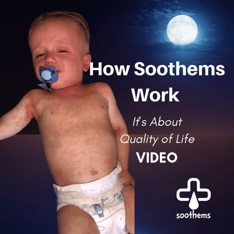Eczema treatment before after results Soothems clothing sleepwear baby
