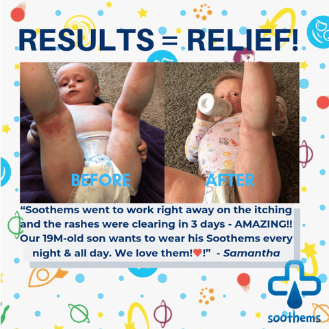 Results before after eczema treatment wet wrap Soothems clothing sleepwear